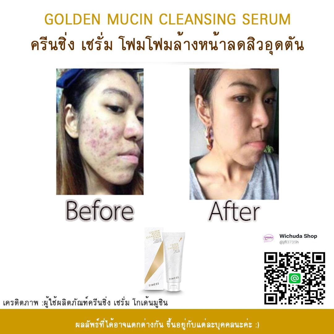 golden mucin cleansing serum รีวิว 01