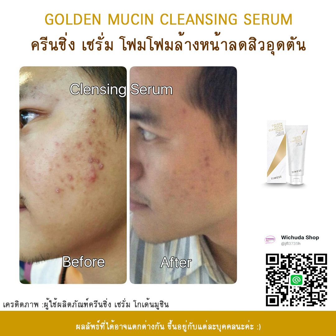 golden mucin cleansing serum รีวิว 04
