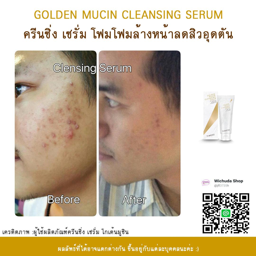 golden mucin cleansing serum รีวิว 04