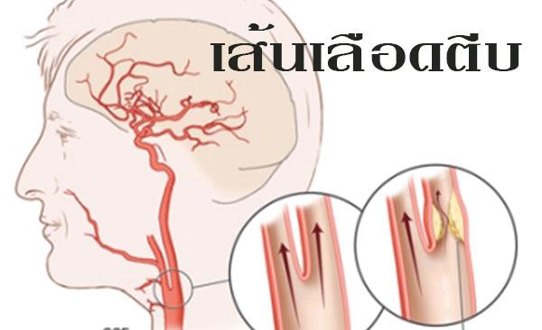 Royal Oil กับผู้ป่วยเส้นเลือดในสมองตีบ